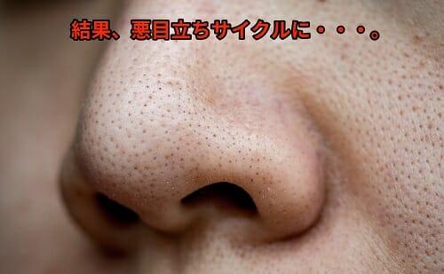 鼻 ワセリン いちご