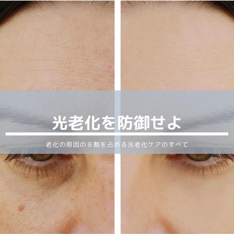 光老化の対策はシンプル!今すぐはじめて美しさを守ろうのイメージ