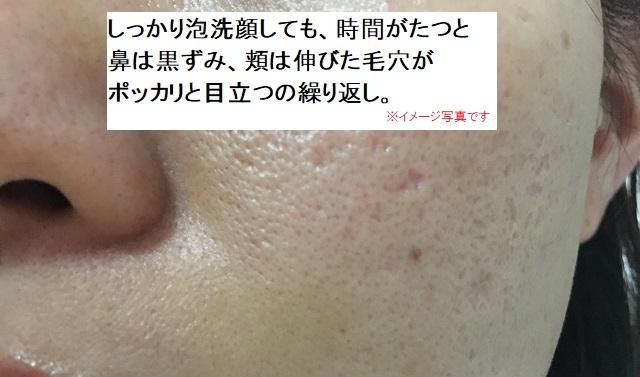 しっかり泡洗顔しても毛穴が目立つの繰り返し